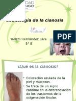 Semiología de La Cianosis