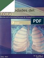 Tuberculosis y Cáncer en el INEN - Perú