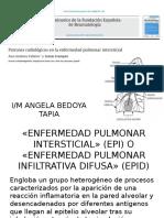 tomografias EPID