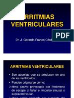 arritmiasventri-100124133935-phpapp01