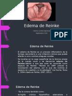 Edema de Reinke