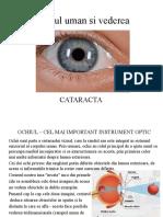 Ochiul-cataracta