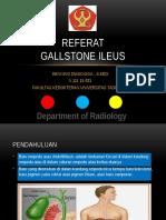 Gallstone Ileus