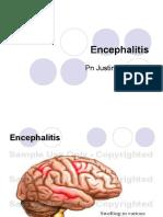 Encephilitis Presentation