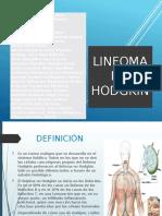 Linfoma No Hodgkin 1 1
