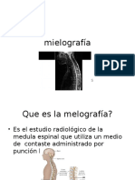 mielografia