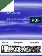 Neoplasias I