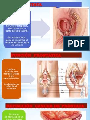 cancer de prostata pdf A prosztatitis gyertyákból származó longidáz