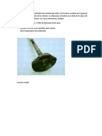 Falla en Valvula - Fractura Cordal