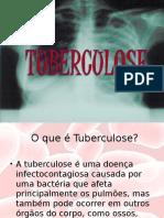 Apresentação Tuberculose