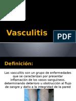 Vasculitis EMILY