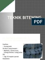 Teknik Bitewing Radiologi