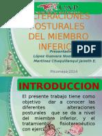 Alteraciones Posturales.expo
