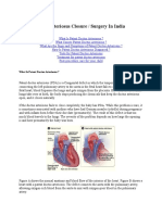 Patent Ductus Arteriosus Closure