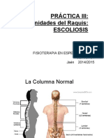 Escoliosis (I)