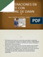 Consideraciones en Paciente Con Sindrome de Dawn