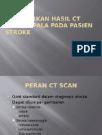 materi belajar ct scan.pptx
