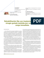Caso Clinico Implantes por Ordenador