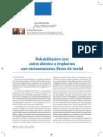 Articulo Rehabilitación Oral  Sobre Dientes e Implantes Con Restauraciones Libres de Metal