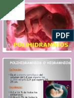 polihidramnios-