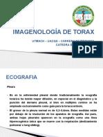Imagenología de Torax