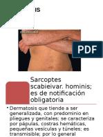 escabiosis.pptx