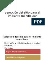 Selección Del Sitio Para El Implante Mandibular