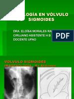 RX. Vólvulo de Sigmoides
