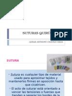 Expo Suturas Cirugia I