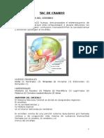 Anatomia Ósea Del Cráneo TAC