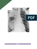 Ejemplos lectura de radiografia de torax
