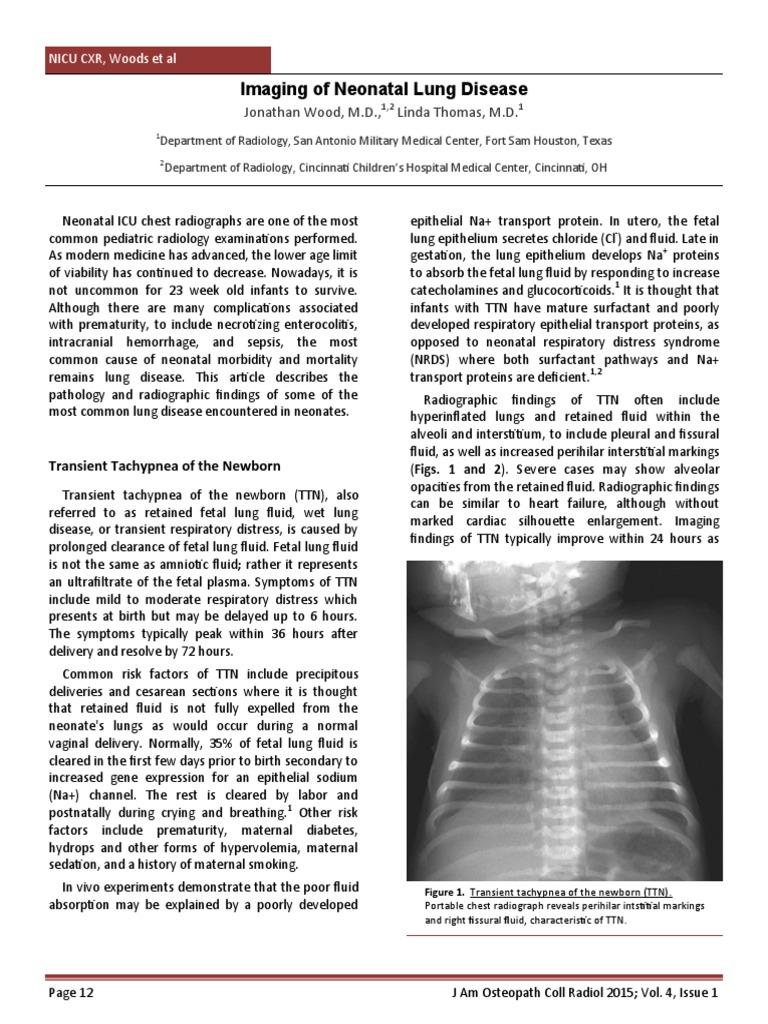Radiology of Pneumonia | Lung | Bienestar
