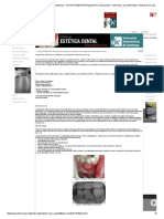 RODE - Revista de Operatoria Dental y Endodoncia - ODONTOPEDIATRIA_Pulpectomía. Indicaciones, Materiales y Procedimientos