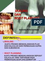Skaling Dan Root Planing (12)_(13)