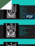 Radiología Del Abdomen