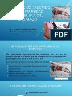 RECIEN NACIDO AFECTADO POR PREECLAMPSIA.pptx