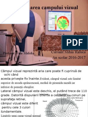 opțiuni de pierdere a câmpului vizual