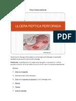 Úlcera Gástrica perforada