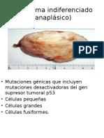 Carcinoma anaplásico
