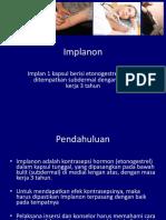 03 Implanon-Profil Implan ENG