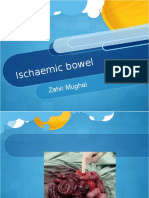 4. Ischaemic Bowel