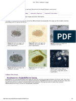 CDC - DPDx - Hookworm - Images