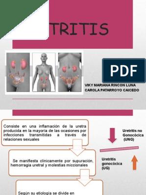 como quitar la uretritis