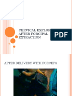 How to Explore After Forceps Extraction
