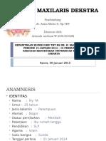 Ppt Case Sinusitis Maxilaris Bilateral