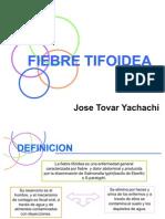 TIFOIDEA TOVAR SEMINARIO
