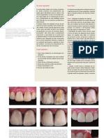 Protocolo de Acabamento e Polimento em Facetas Diretas.pdf