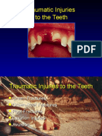 Traumatic Injuries to the Teeth4541