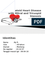 Rhematoid Heart Disease With Mitral and Tricuspid Stenosis