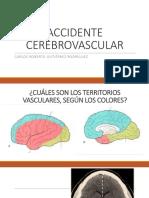Accidente Cerebrovascular